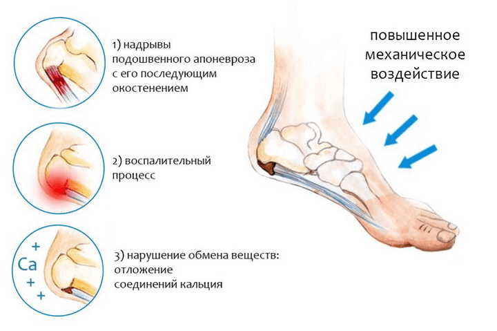 Если ломят суставы ног диартрозы суставы
