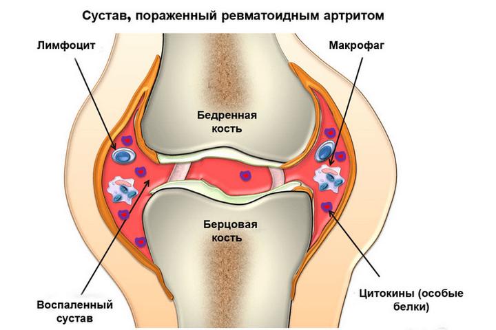 Почему болит пятка на левой ноге