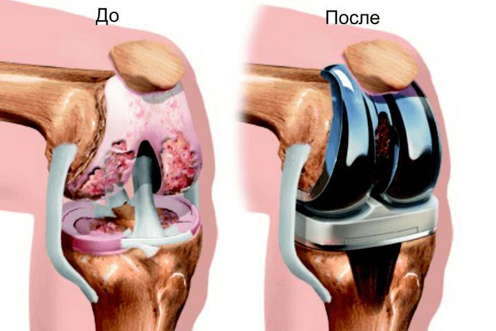 Как лечить ушиб коленного сустава если появился отек