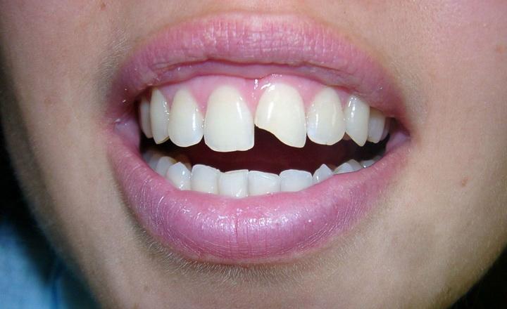 Крошатся зубы у взрослого – почему, причины, что делать