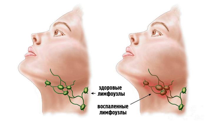 Воспаление лимфоузлов на шее: лечение в домашних условиях