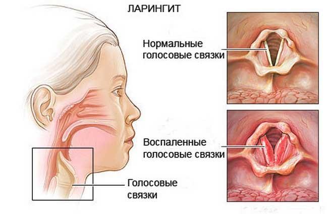 народными Как у ребенка как. :: средствами лечить горло