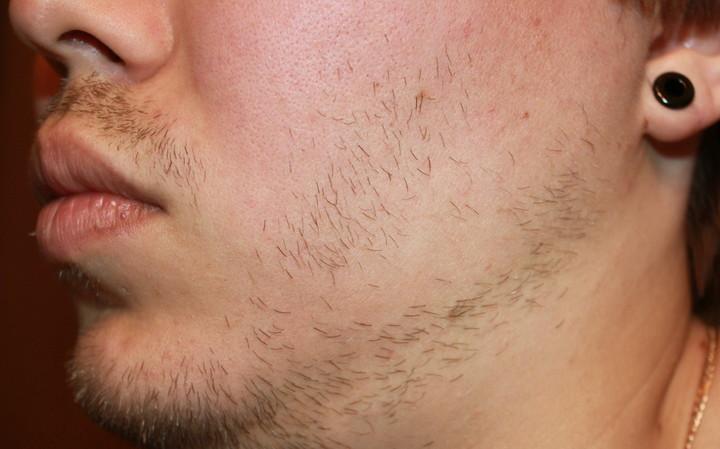 Почему на лице неравномерно растут волосы