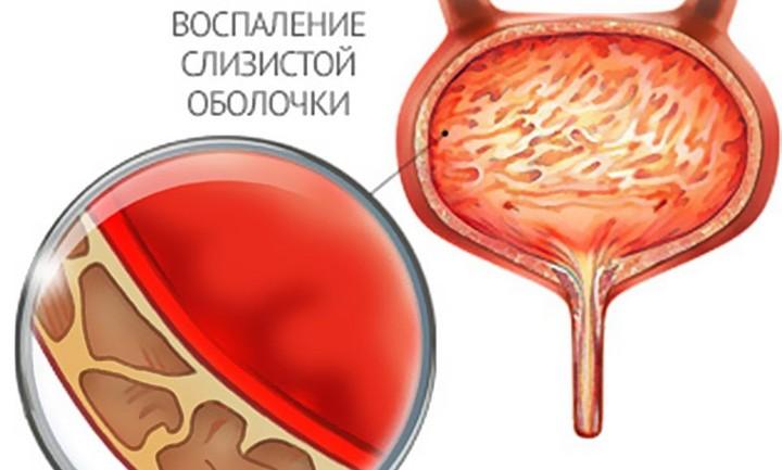 Воспаление мочевого пузыря у мужчин