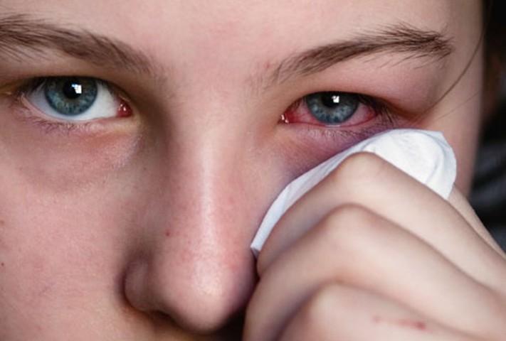 Почему краснеют глаза? Причины красных глазных белков