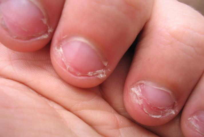 Как отучить ребенка грызть ногти на руках?