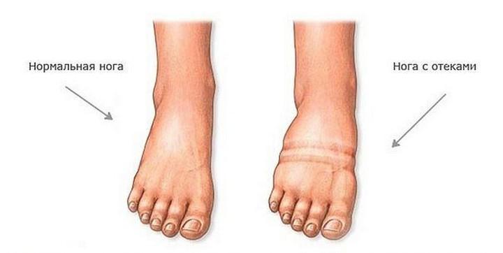 Болит нога правая при беременности