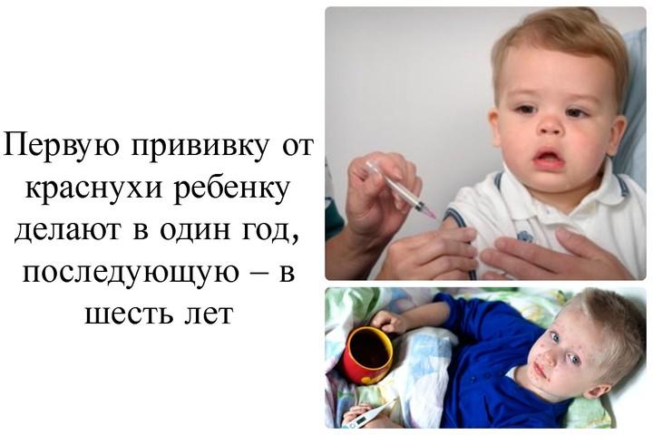 детская прививка от краснухи