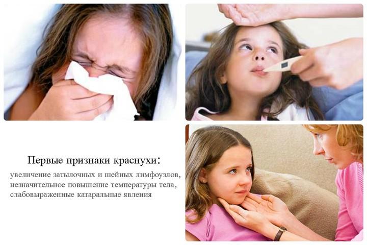 первые признаки краснухи у детей