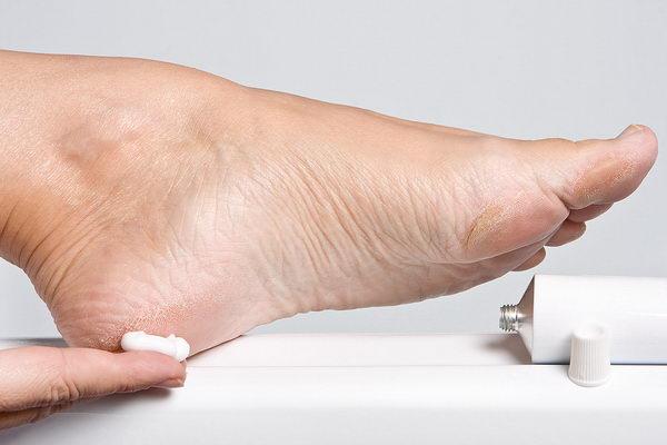 Почему кожа на руках и пятках сохнет и трескается: причины сухости ступни, лечение в домашних условиях