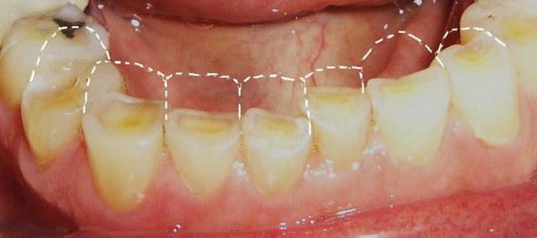 стёртые зубы