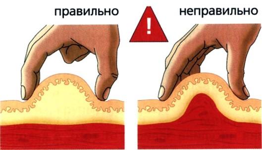 Куда делать укол в ягодицу схема