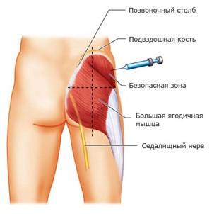 После укола в бедро болит колено перелом сустава собака операция цена