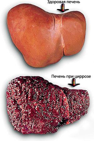 Препараты при жировой гепатоз печени лечение