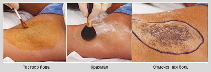 Проба Минора для диагностики гипергидроза