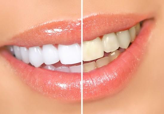 Как отбелить зубы содой в домашних условиях? Рецепт без вреда для здоровья