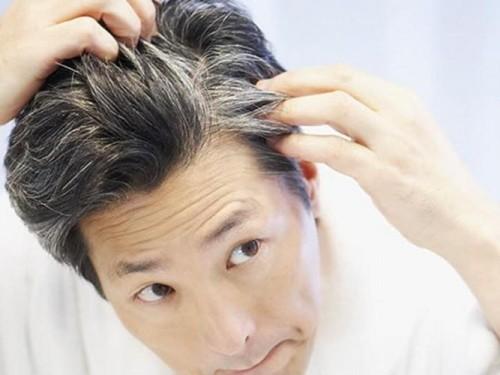 Во сколько лет у женщин седеют волосы
