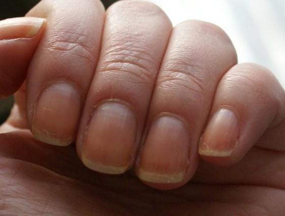 Лечение ног при сахарном диабете ногти
