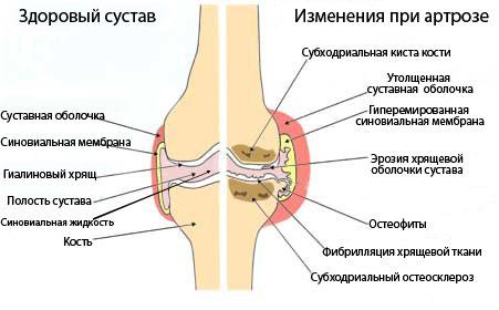 Скрипят суставы лечение суставы жсй