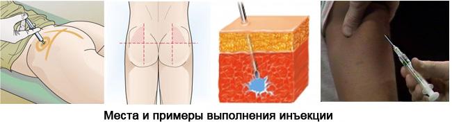 как ставить укол внутримышечно